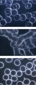 Dunkelfeld-Vitalblut-Mikroskopie
